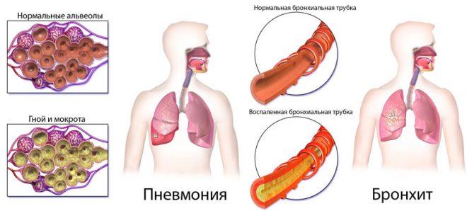 Запалення бронхів легенів симптоми – Лікування простудних захворювань