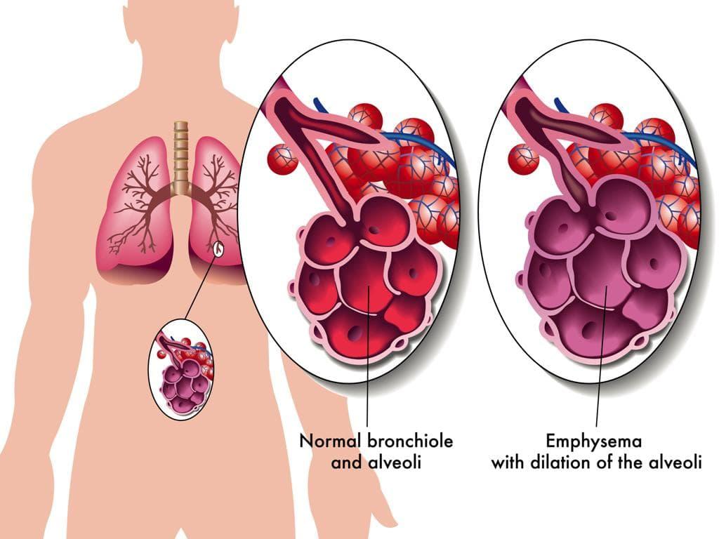 zapalennya legen v bez temperaturi simptomi l kuvannya u doroslih 1 - Запалення легенів без температури симптоми і лікування у дорослих
