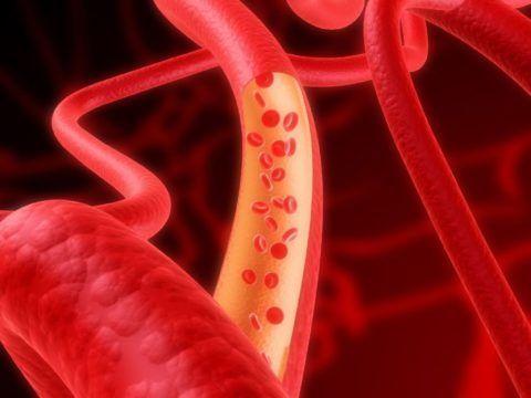 zapamorochennya pri shiynomu osteohondroz simptomi l kuvannya 1 - Запаморочення при шийному остеохондрозі симптоми лікування
