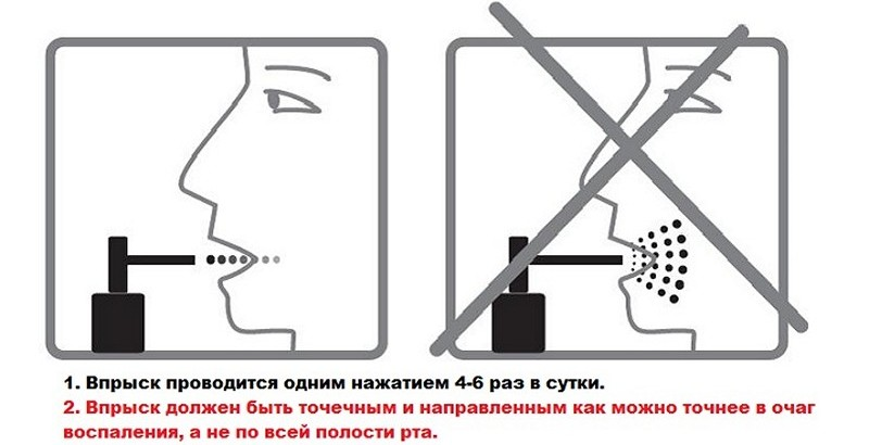 Застосування спрею Люголь по інструкції дітям і дорослим