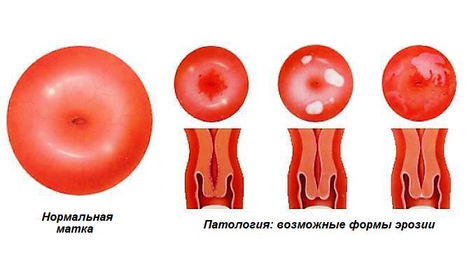 Заважає ерозія шийки матки завагітніти — Твій гінеколог