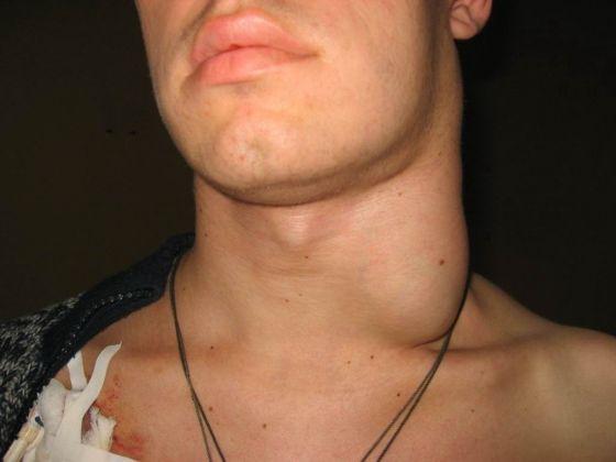 Збільшені лімфовузли на шиї ефективне лікування недуги