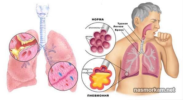 Жовта мокротиння при кашлі небезпечний симптом