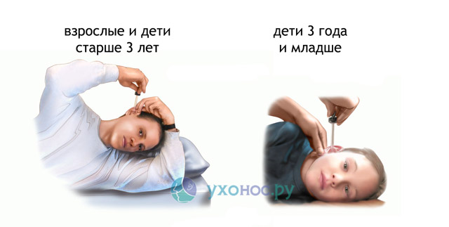 Знеболюючі ліки при отиті запаленні вуха