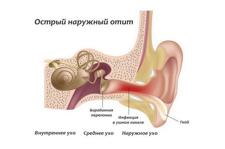 Зовнішній отит – причини, симптоми, діагностика та лікування
