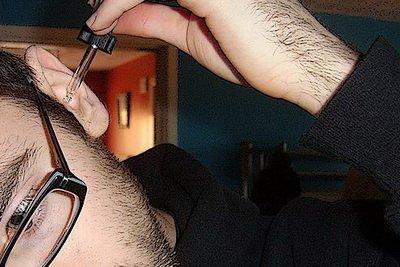 Зовнішній отит: симптоми і лікування запалення зовнішнього вуха