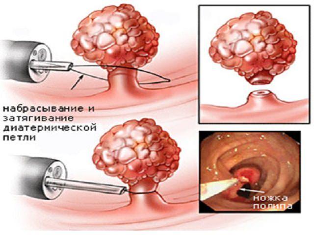 Звідки в сечовому міхурі з'являються поліпи що роблять для їх лікування