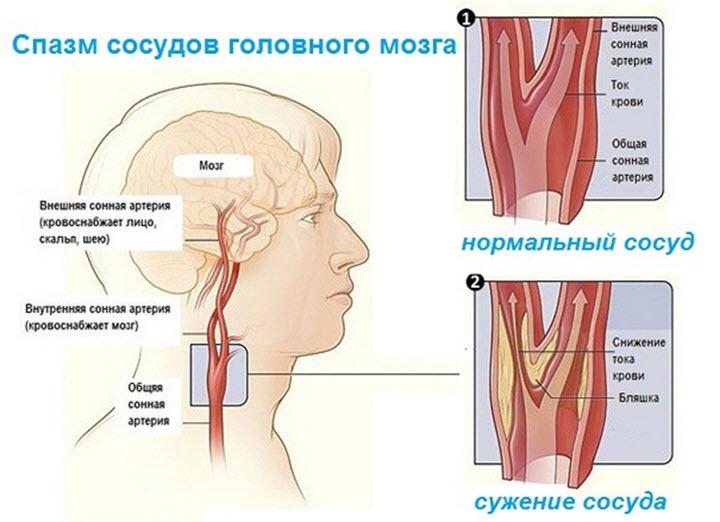 Звуження судин головного мозку: причини і лікування народними засобами